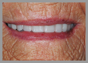 smile of new denture with longer teeth to look more youthful