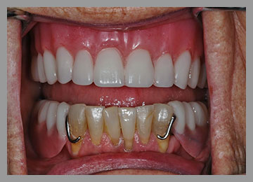 new updated top denture with longer teeth and more natural looking gums and two lowered clasps on bottom partial to hide from view