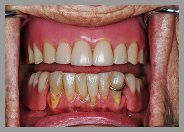 older model of full denture on top jaw and partial on bottom with only one clasp