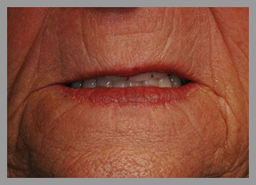 smile with full lower fixed prosthesis