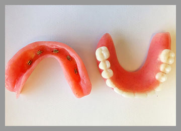 bottom and top view of overdentures with clips