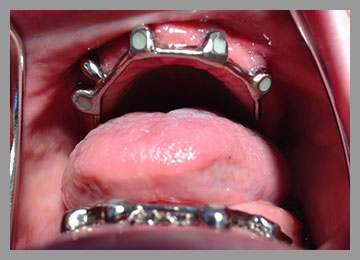 gold bars attached to dental implants for upper and lower jaw and tongue